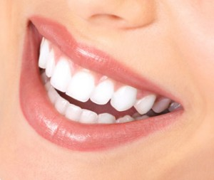 Your New Smile Doesn't Need to Cost a Fortune